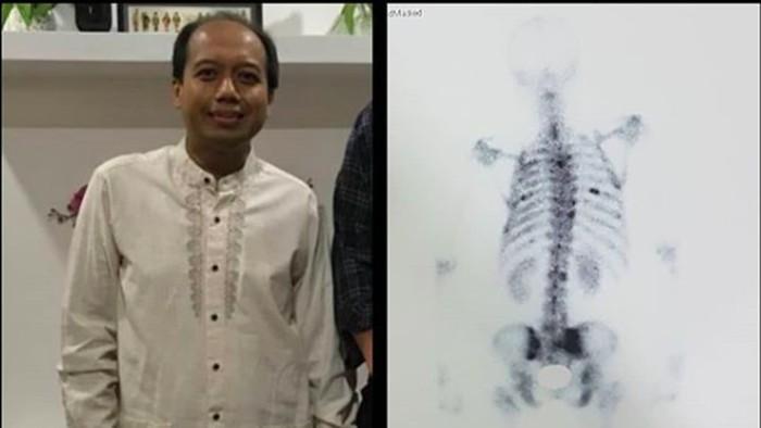 Sutopo mengunggah foto rontgen yang menunjukkan dirinya mengidap skoliosis. (Foto: instagram Sutopo PN)