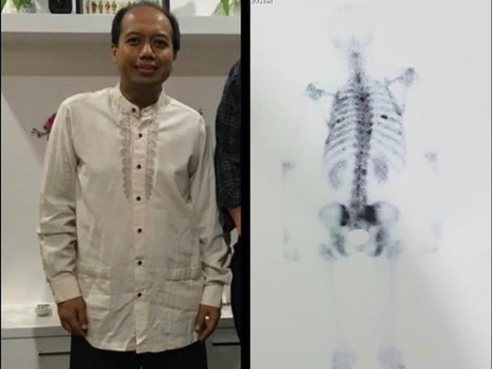 Tulang belakang mulai terkena skoliosis (Foto: instagram Sutopo PN)