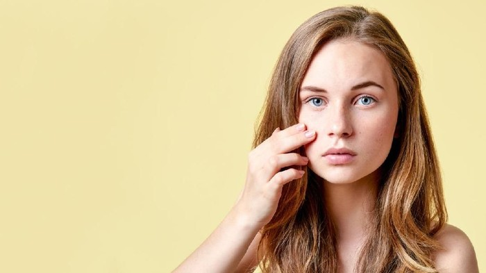 Ilustrasi jerawat yang merupakan tanda kanker kulit. Foto: iStock