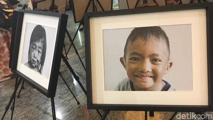 Beberapa anak berpenyakit langka di Indonesia. Foto: Frieda Isyana Putri/detikHealth