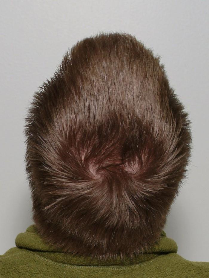 Biasanya seseorang memiliki satu pusar kepala, namun ada juga mereka yang punya lebih. Beberapa studi melihat kaitan pusar kepala dengan perilaku manusia. (Foto: HorsePunchKid/Wikimedia Commons)