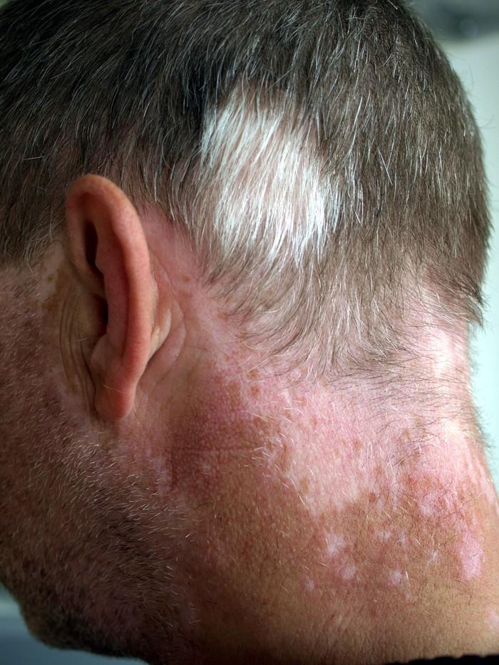 Biasanya tanda lahir muncul di kulit, namun ada juga orang yang memilikinya di kulit kepala memengaruhi warna rambut. Kondisi ini disebut poliosis. (Foto: Klaus D. Peter/Wikimedia Commons)