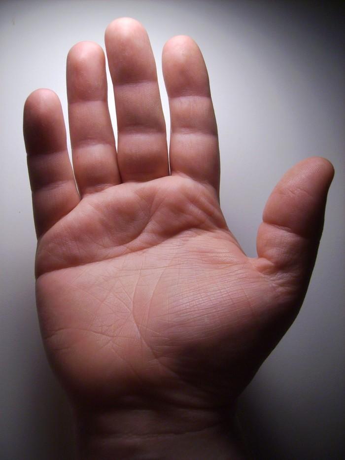 Nah terakhir coba lihat telapak tangan kamu, adakah yang punya satu garis tangan di tengah yang tidak putus dari ujung ke ujung? Kondisi ini disebut lebih umum terjadi pada pria. (Foto: WurdBendur/Wikimedia Commons)