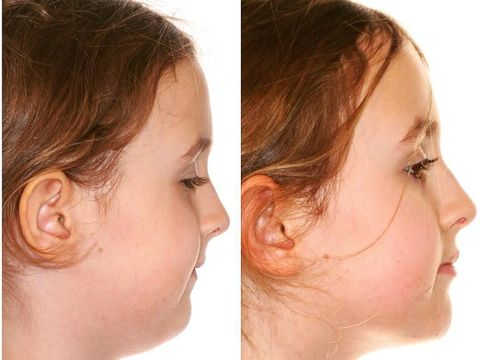 Viral Cara Menggerakan Lidah yang Bisa Bikin Wajah Tirus, Ini Caranya
