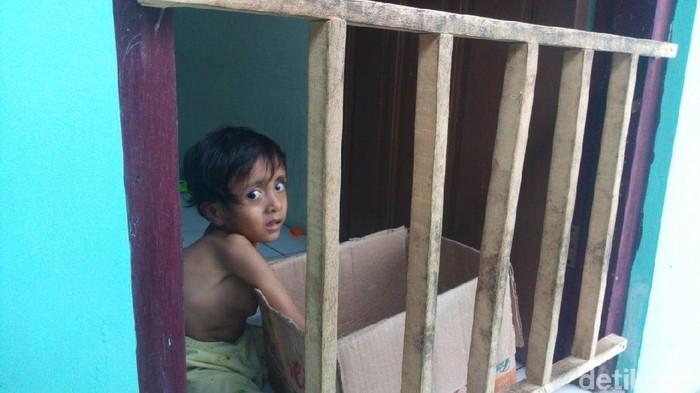 Seorang bocah di Semarang mengidap skoliosis (Foto: Aji Kusuma/detikHealth)
