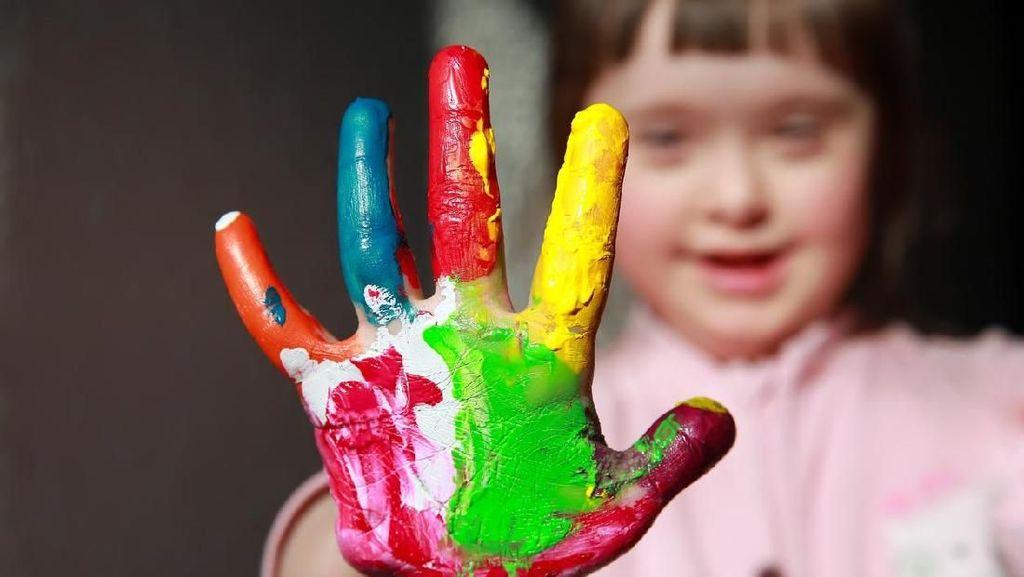 Bayi Down Syndrome Berisiko 40 Persen Terkena Penyakit Jantung