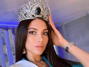 Ratu Kecantikan Moscow Dipecat karena Bohong, Ngaku Sakit Ternyata Liburan