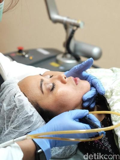 Perawatan laser wajah. Foto: Silmia Putri/Wolipop