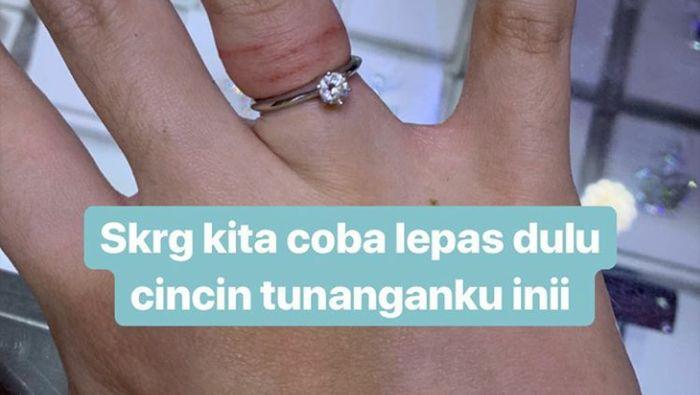 Jari Tasya Kamila Bengkak Karena Cincin Nikah Begini Cara Melepasnya