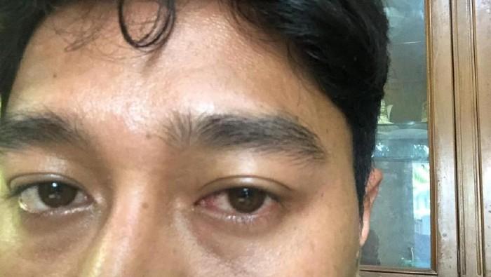 Iritas mata karena gadget. Foto: dok. Pribadi Muhammad Sukardi