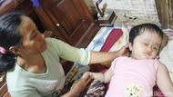 Hidrosefalus, Bocah 7 Tahun di Cipatat Tak Berdaya