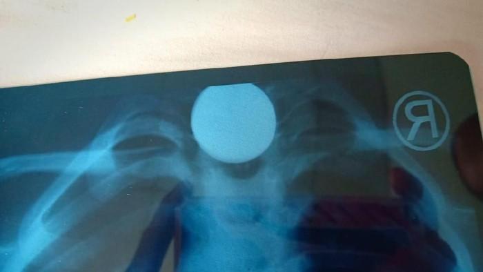 Kasus bocah telan benda asing. Foto: Dok. Onlihu