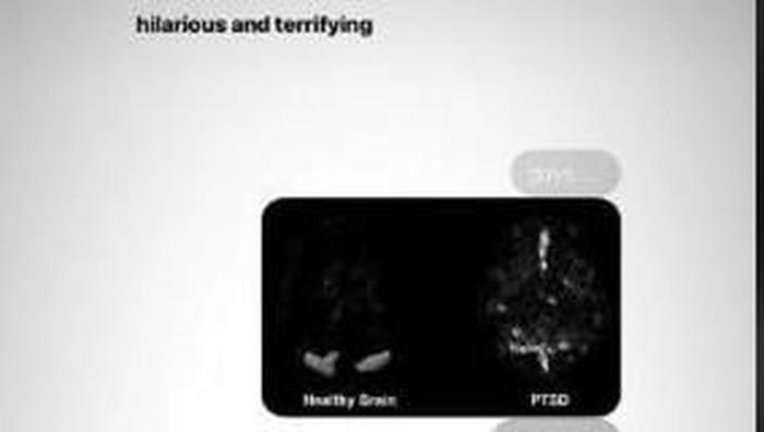 perbandingan otak sehat dengan otak Ariana Grande yang alami trauma. Foto: Instagram @arianagrande
