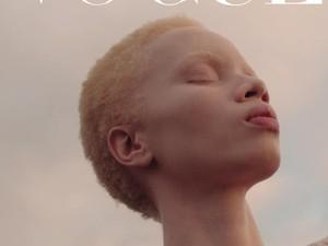 Cetak Sejarah, Ini Model Albino Pertama yang Tampil di Sampul Vogue
