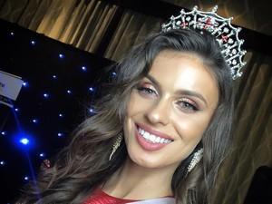 Pesona Fatime Gashi, Mantan Pengungsi Muslim yang Jadi Ratu Kecantikan