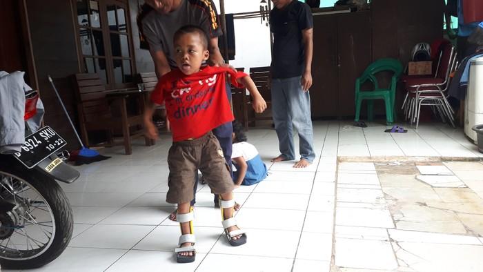 Beberapa anak pengidap celebral palsy, yaitu gangguan gerakan, otot, atau postur yang disebabkan oleh cedera atau perkembangan abnormal di otak, mendapatkan sepatu berwarna yang membantunya untuk berdiri dan berjalan. Foto: Widiya Wiyanti/detikHealth