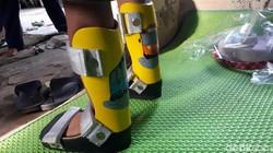 Beberapa anak pengidap celebral palsy mendapatkan sepatu berwarna yang membantunya untuk berdiri dan berjalan. Seperti ini raut wajah gembira mereka.