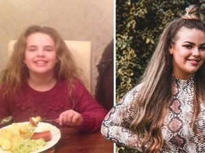 Selama 14 Tahun, Gadis Ini Takut Dengar Suara Makanan Dikunyah!