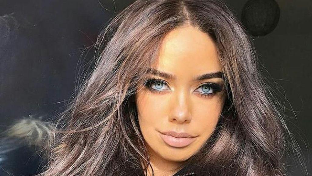 Youtuber Cantik Ini Dulu Diisukan Bunuh Diri, Kini Nyaris Kehilangan Bibir