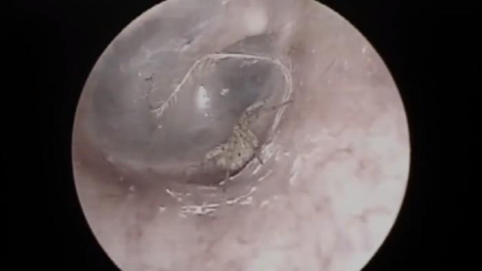 Seorang pria asal China pergi ke spesialis THT karena merasa telinganya gatal-gatal. Setelah dicek ada seekor laba-laba kecil sedang membuat sarang. Foto: Pear Video