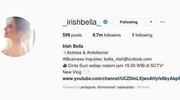Irish Bella dan Ammar Zoni Kompak Hanya Saling Follow Akun Pasangan