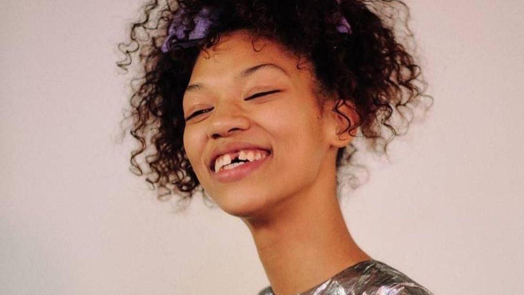 Potret Symone Lu, Model yang Jadi Terkenal karena Punya Gigi Ompong