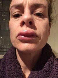 Penampakan bibir Clare yang bengkak karena veneer gigi yang gagal