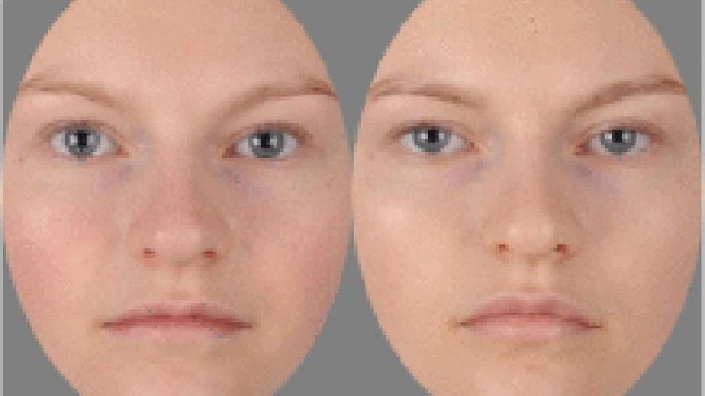 Tebak Mana Foto yang Lagi Sakit! Kata Peneliti Harusnya Bisa Ketahuan Lho