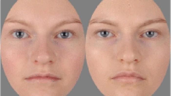 Coba tebak mana di antara foto ini yang menunjukkan orang sakit. (Foto: Jurnal Brain, Behavior, and Immunity)