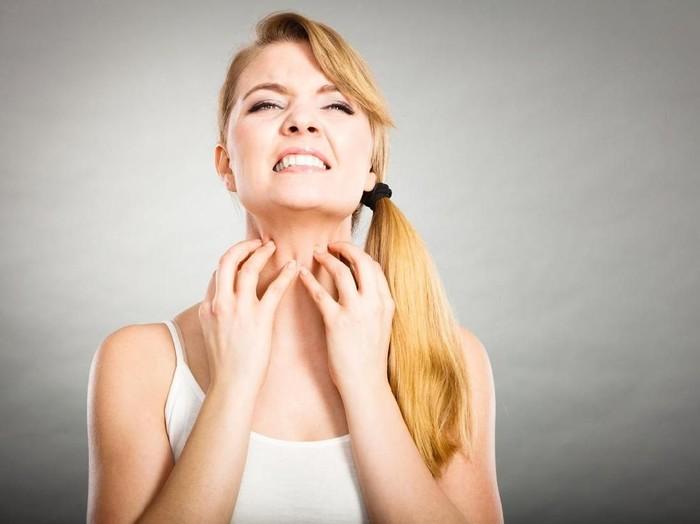 Dermatitis Atopik: Gejala, Penyebab, dan Pengobatannya/Foto: istock