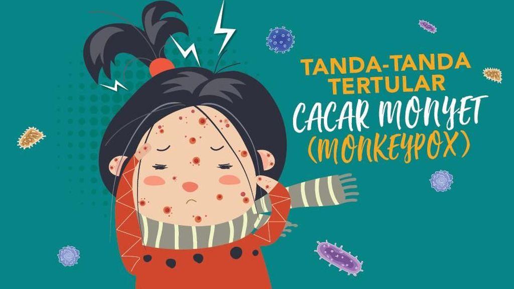 Infografis: Tanda-tanda Tertular Cacar Monyet