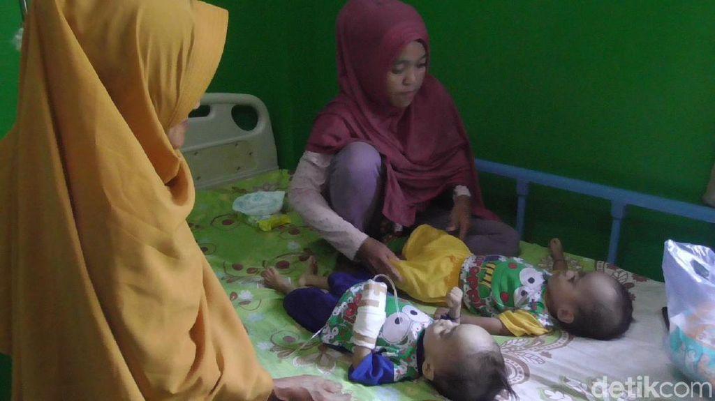 Bayi Kembar di Polman Idap Gizi Buruk, Ortu Kesulitan Biayai Perawatan
