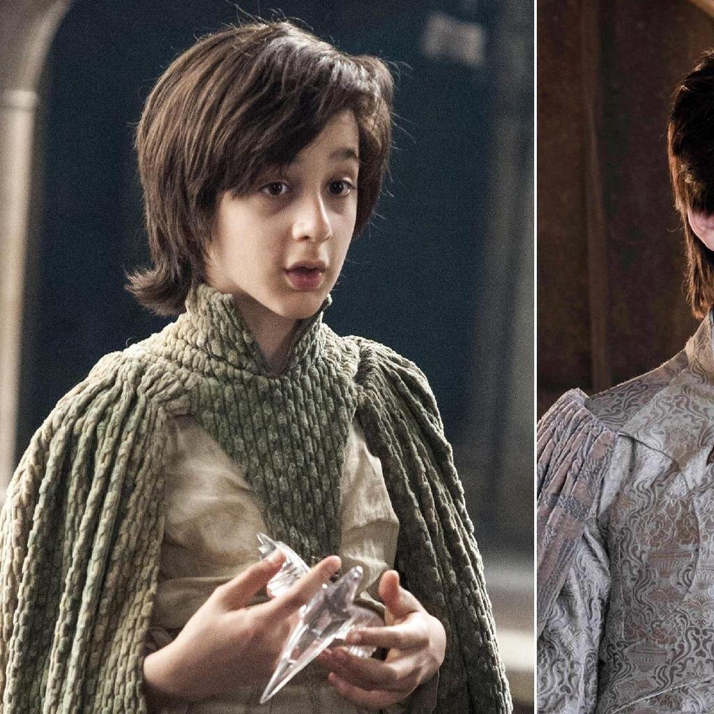 Ini Robin Arryn, Pangeran Tampan yang Curi Perhatian di Game of Thrones