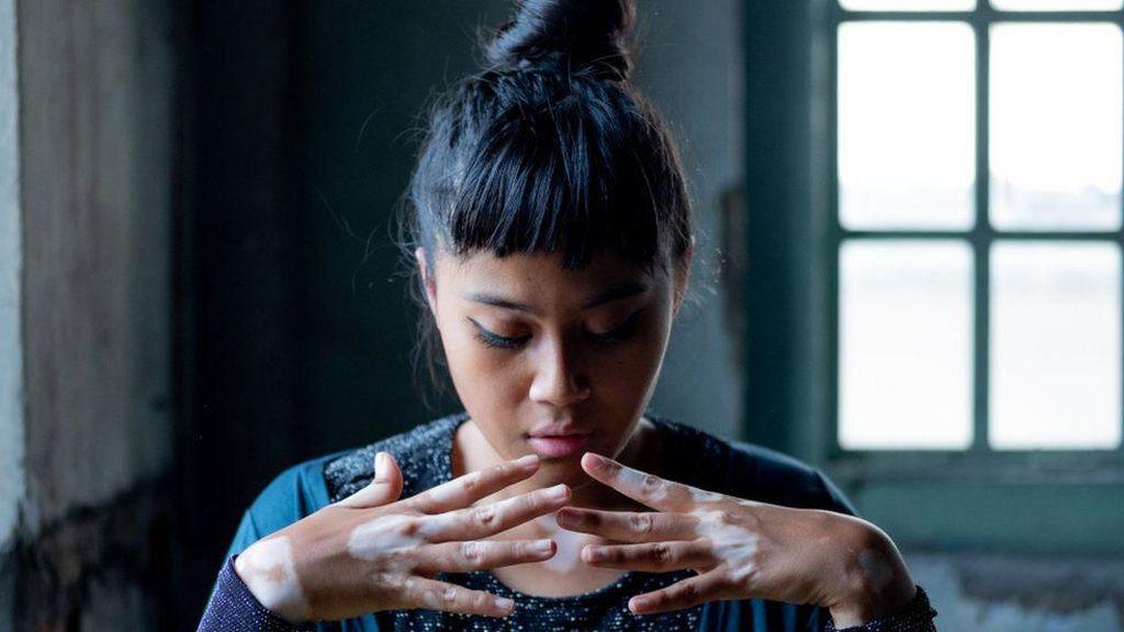 Saat Wanita Filipina dan Malaysia Kampanye Melawan Ejekan Bentuk Tubuh