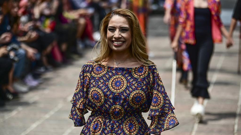 Kisah Wanita Tanpa Lengan Menolak Pasrah, Sukses Jadi Desainer dan Pengacara