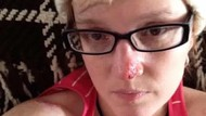 Pengalaman Ngeri Wanita yang 86 Kali Operasi Demi Lawan Kanker Kulit