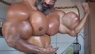 Demi Otot Super Besar, Binaragawan Ini Nekat Suntik Minyak Wijen