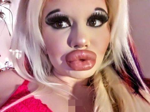 Bibir Jumbo Mirip Monster, Wanita Ini Obsesi Punya Bibir Terbesar di Dunia