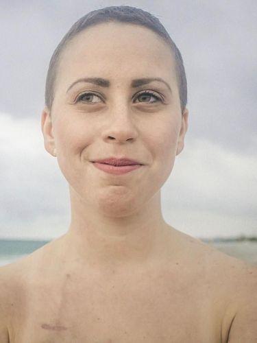 Racheli Alkobey, penyintas kanker darah