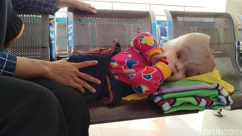 Dipantau RSHS, Bayi Tanpa Tempurung Kepala Kontrol Sebulan Sekali