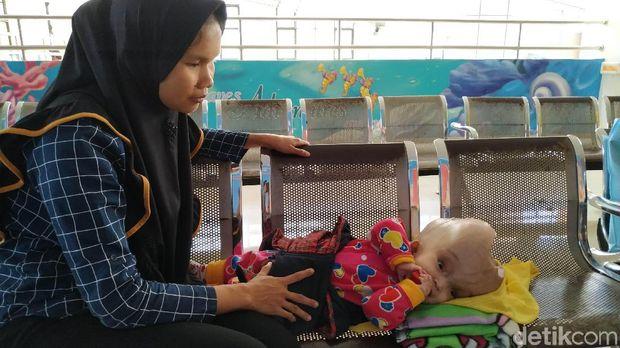 Bayi Tanpa Tempurung Kepala Rutin Kontrol ke RSHS Bandung