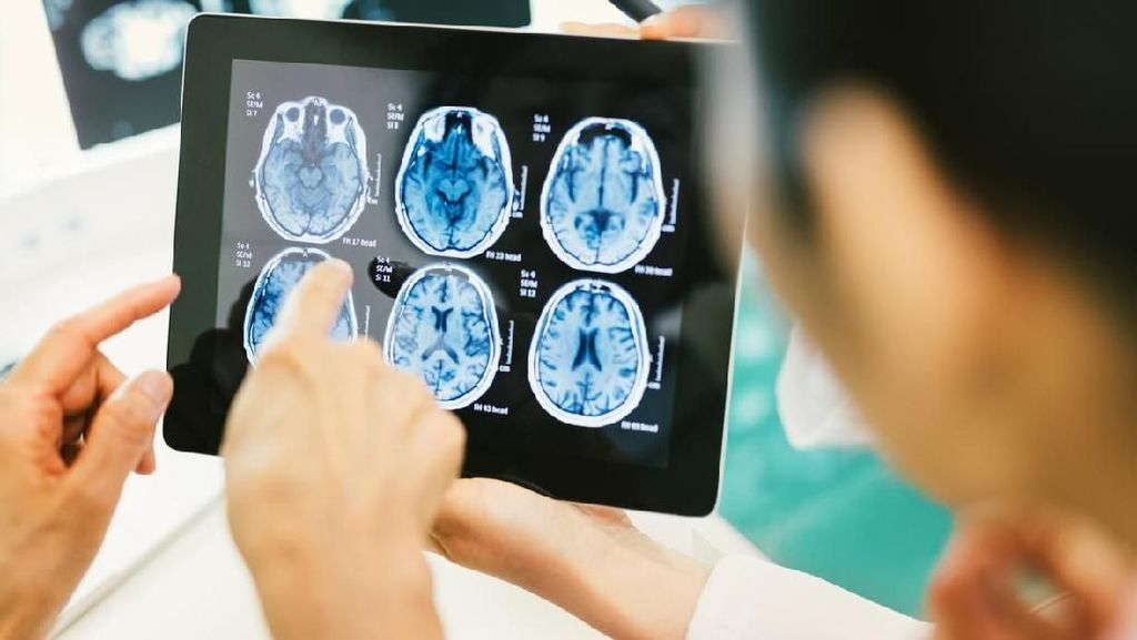 Dikira Pusing Biasa, Pria Ini Didiagnosis Kanker Otak