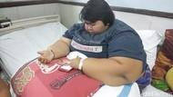 Yunita, Gadis Berbobot 142 Kg Meninggal di RS
