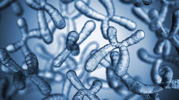 Sindrom Williams disebabkan karena faktor genetik