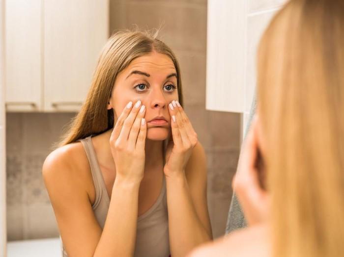 13 Cara Menghilangkan Kantung Mata Secara Alami, Mudah Kan?/Foto: iStock