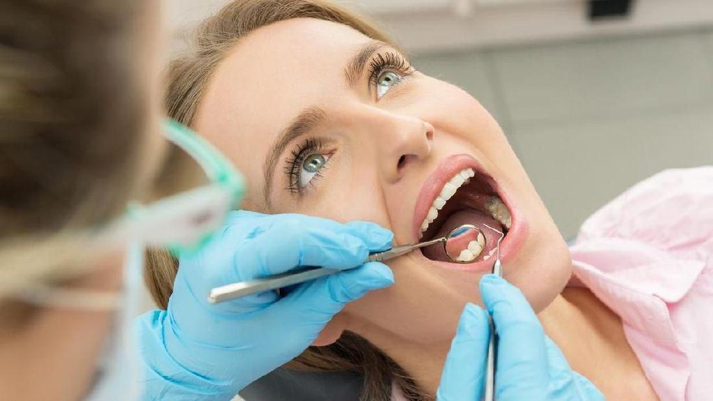 Scaling Gigi Dianjurkan 6 Bulan Sekali, Ini Fakta-faktanya