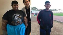 Bobot Sudah Turun Drastis, Kenapa Aria Bocah Tergemuk Harus Operasi Lagi?