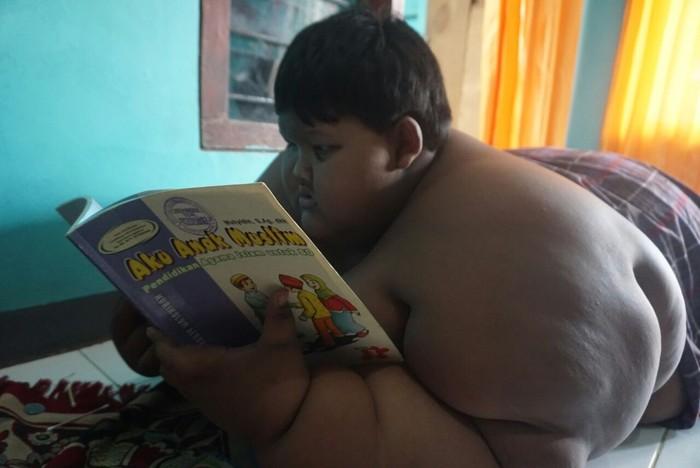 Aria Permana, bocah usia 13 tahun asal Karawang, Jawa Barat dijuluki sebagai Bocah Tergemuk Sedunia. (Foto: Frieda Isyana Putri/detikHealth.)