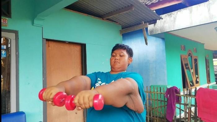 Operasi bedah lambung menyisakan kulit bergelampir di tubuh Aria Permana (Foto: Frieda Isyana Putri/detikHealth)