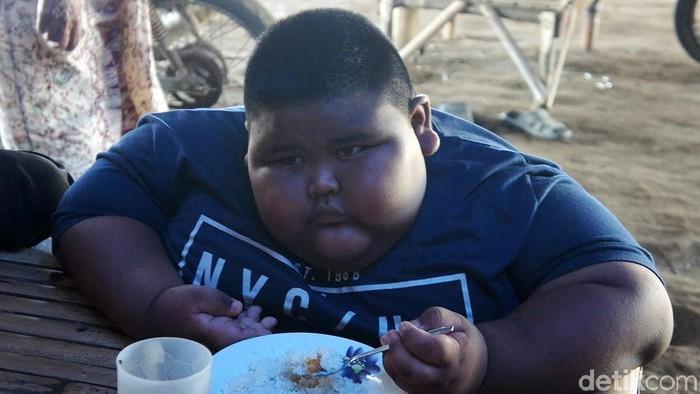 Satia Putra, bocah obesitas asal Karawang yang meninggal karena asma. Foto: Luthfiana